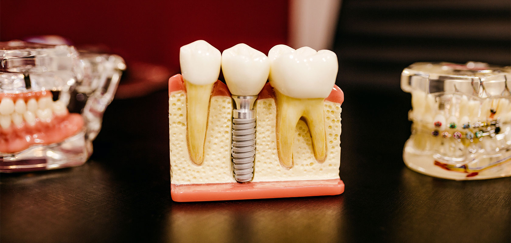 Dental Implants: Everything You Need to Know About Them