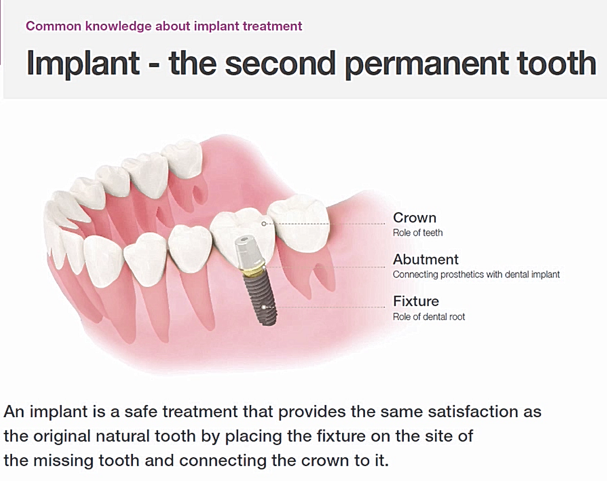 Dental Implants - The Second Permanent Tooth
